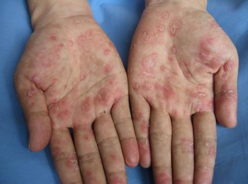 Отравление формальдегидом: симптоми, лечение, профилактика