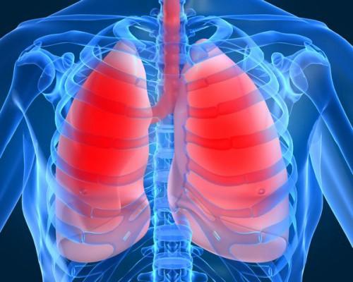 Интоксикация при воспалении легких: симптоми, лечение
