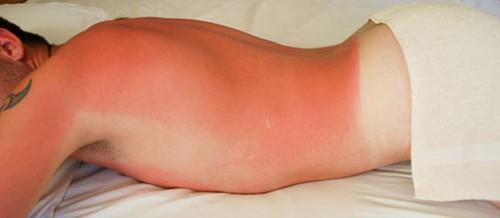 Защита от ультрафиолета: лица, глаз, кожи, волос (электроофтальмия)