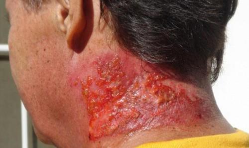 Лучевая болезнь: симптоми, причини появления, помощь, лечение