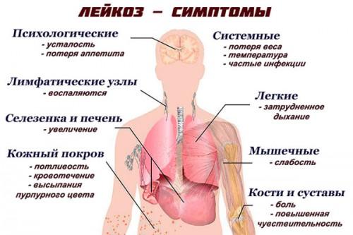 Схема: лейкоз - симптоы