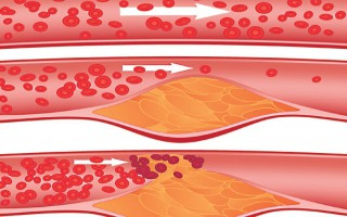 Схема закупорки кровеносных сосудов