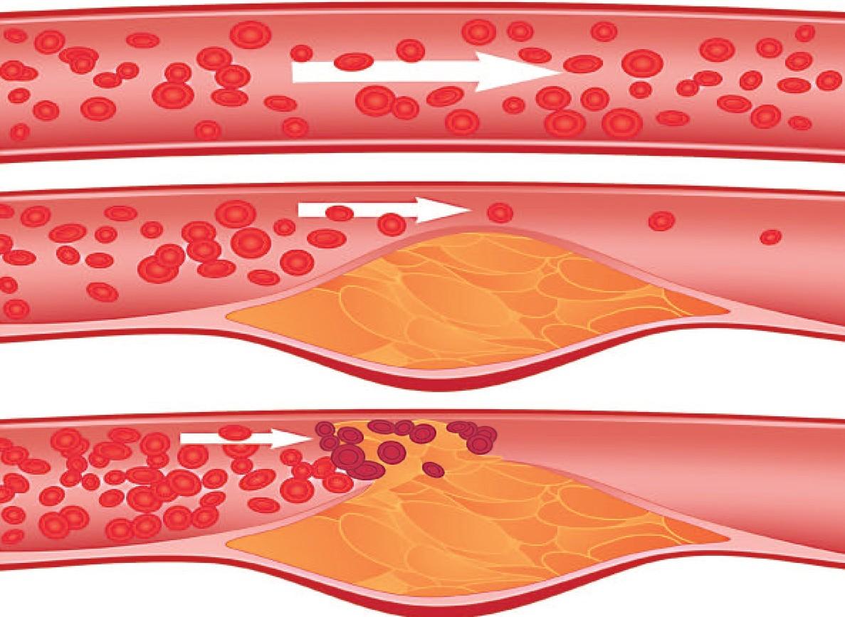 чистка сосудов сердца от холестерина