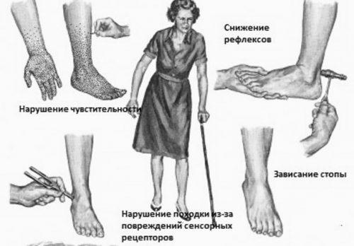 Алкогольная полинейропатия нижних конечностей: лечение, препарати, симптоми