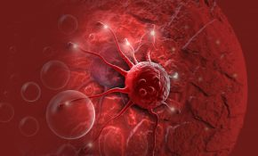 Интоксикация организма при раке