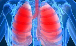 Воспаление легких – интоксикация