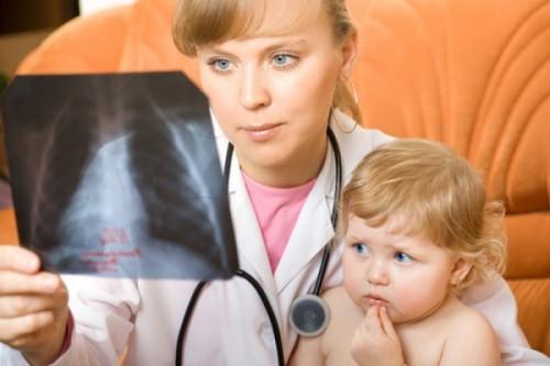 ечЛение пневмонии у детей