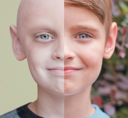 Больной раком